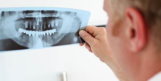 cirugia-oral